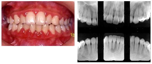 炎 治療 歯肉 歯肉炎の治療と予防